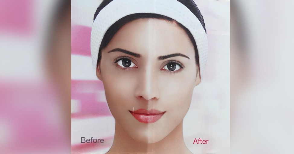 Indians Take a Stand Against Skin Whitening